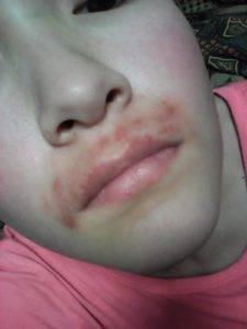 Раздражение после депиляции на лице
