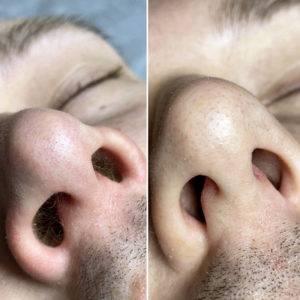 Учеными доказано, что полностью удалять волосы из носа нельзя. Так вы лишаете свой организм естественной защиты