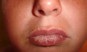 Воск от ран на губах