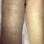 Удаление воском волос на ногах