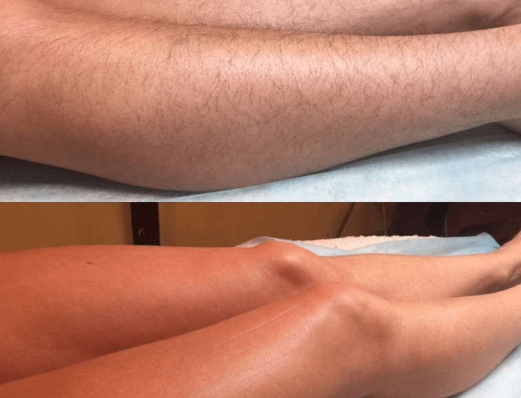 Удаление воском волос на ногах отзывы
