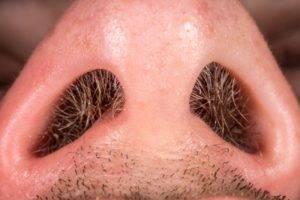 Волосы в ноздрях