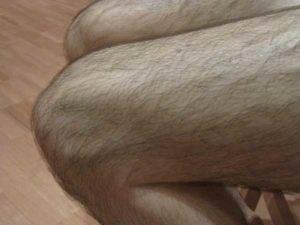 Почему быстро растут волосы на ногах
