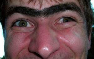 волосы на переносице у мужчин