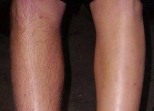 Волосы растут на коленях