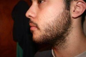 Волосы на щеках