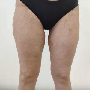Большинство женщин считает, что волоски на внутренних бедрах области тела (выше колена) тонкие — следовательно, они незаметны