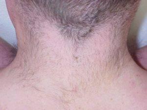 Волосы на шее у мужчин