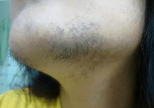 Растет жесткий волос