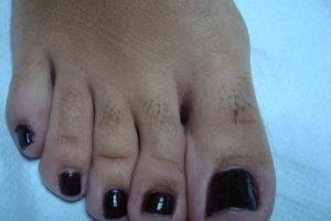На ногах пальцах растут волосы