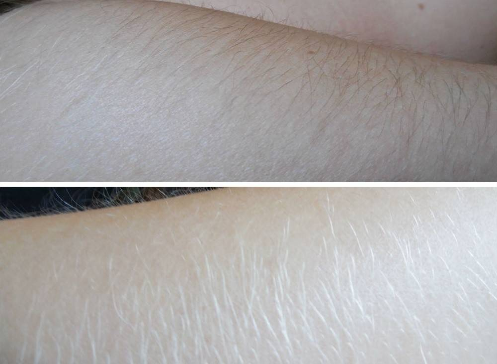 волосы на ногах в домашних условиях