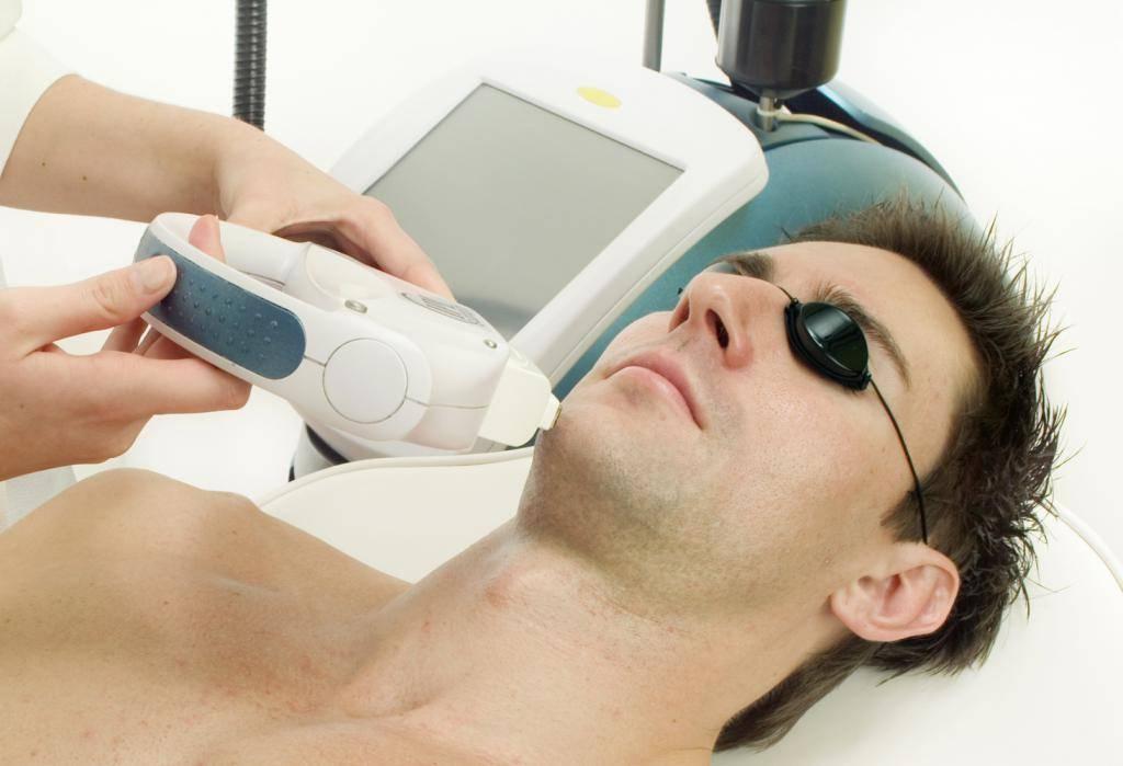 Делают ли мужчины лазерную эпиляцию