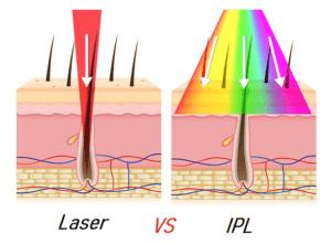 IPL отличия от лазерной эпиляции