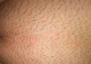 Инфекция после бритья и эпиляции