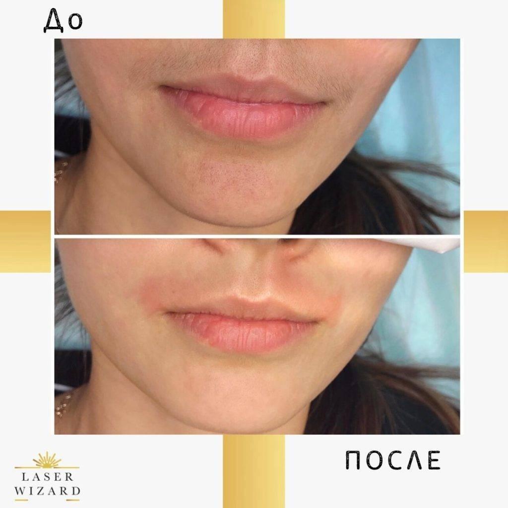 Лазерная эпиляция верхней губы побочные эффекты