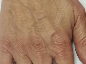 Морщинистая кожа на руках что делать