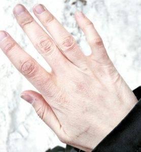 Морщинистая кожа на руках фото