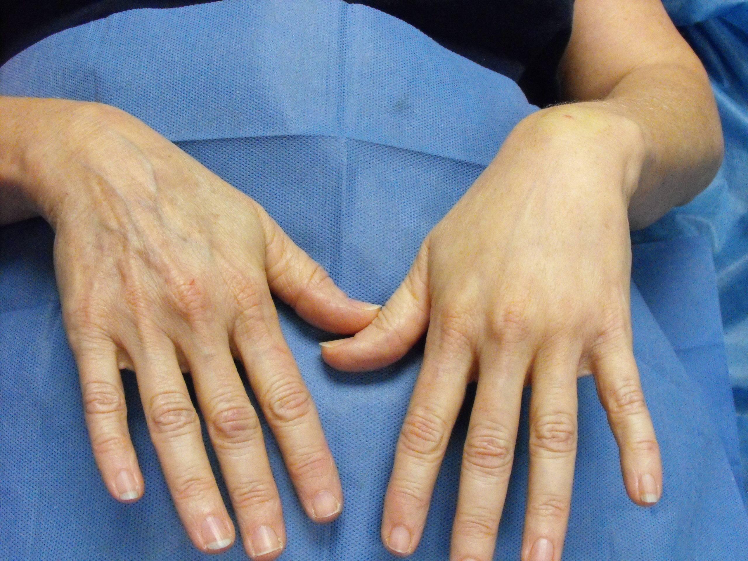 Морщинистая кожа на руках