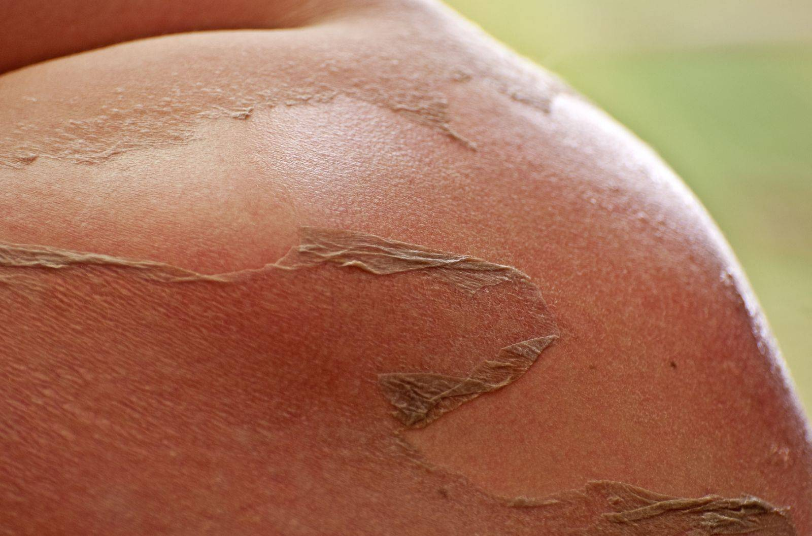 Содранная кожа воском