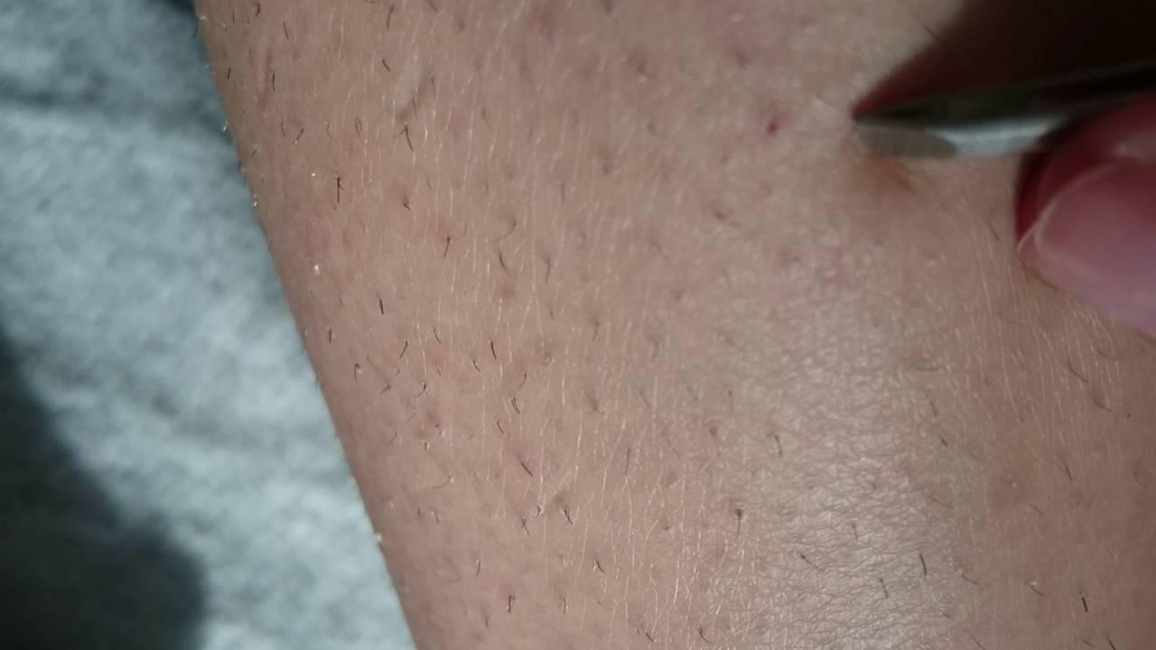 шишки от выщипывания волос