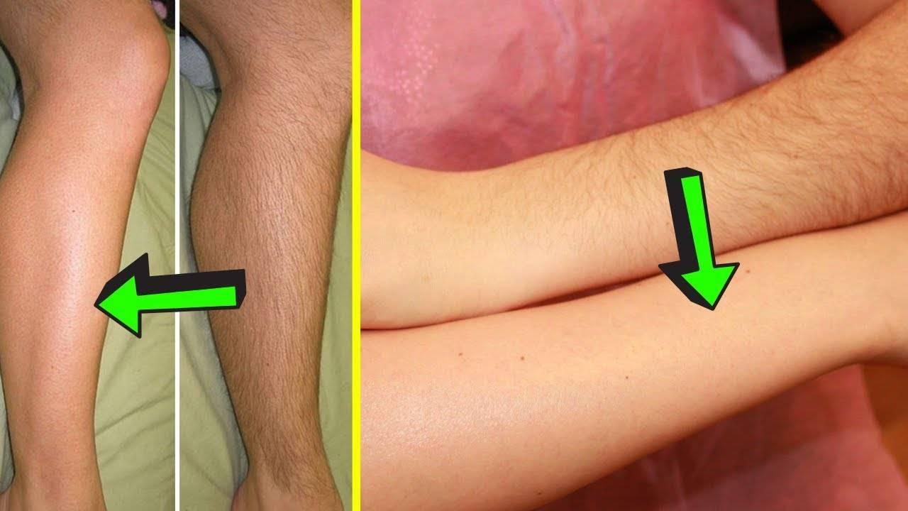 удалить волосы на теле в домашних условиях