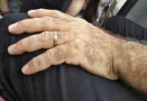 волосы на руках у мужчин