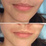 Раздражение над верхней губой после депиляции