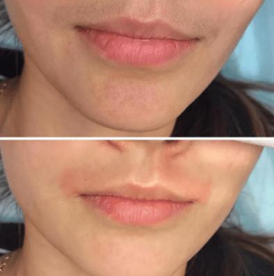 Как убрать раздражение над верхней губой после депиляции