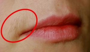 Как убрать волоски над верхней губой