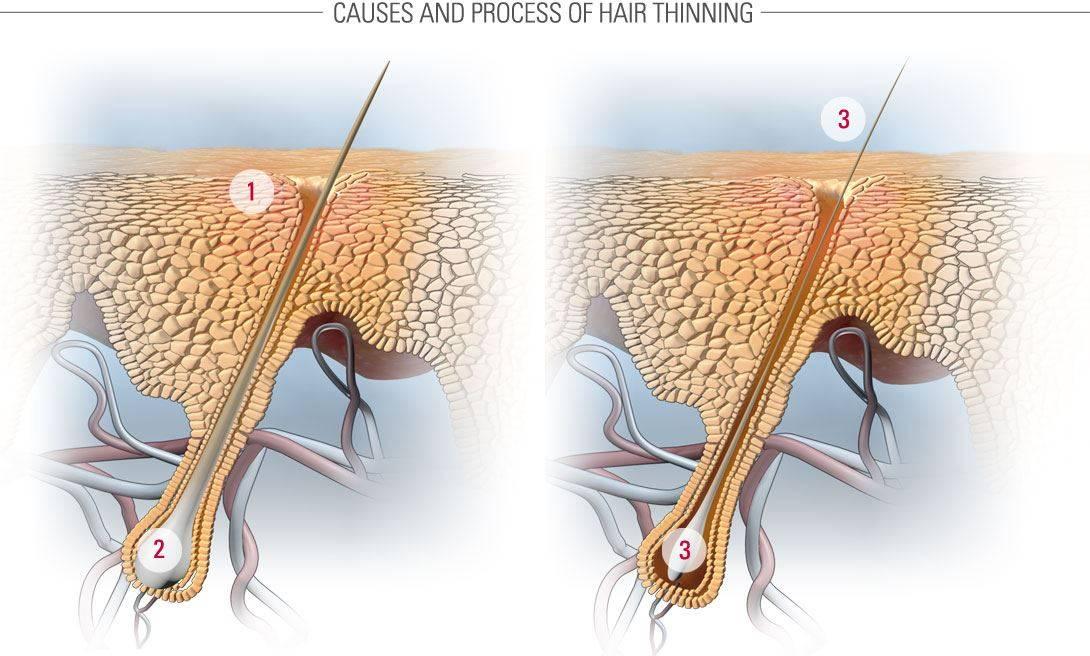 Как удалить корни волос