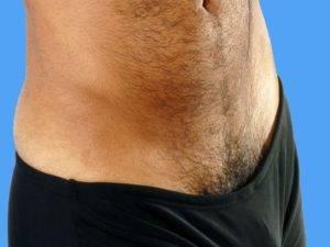 Мужчины бреют лобковые волосы