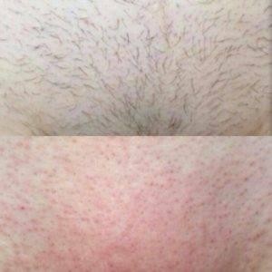Раздражение от бритья станком