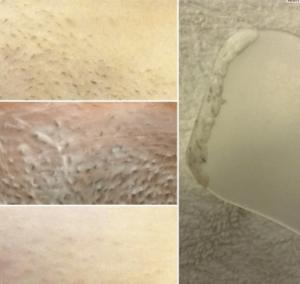 удалить волосы в зоне бикини кремом