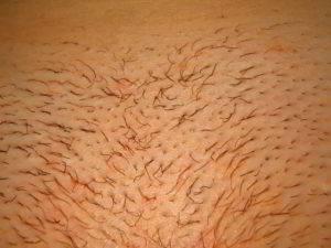 Духовный смысл сна про волосы на лобке