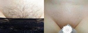 Удаление волос на лобке