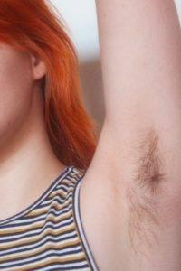 Волосы подмышками причины