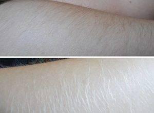 Как самостоятельно обесцветить волосы на теле и лице